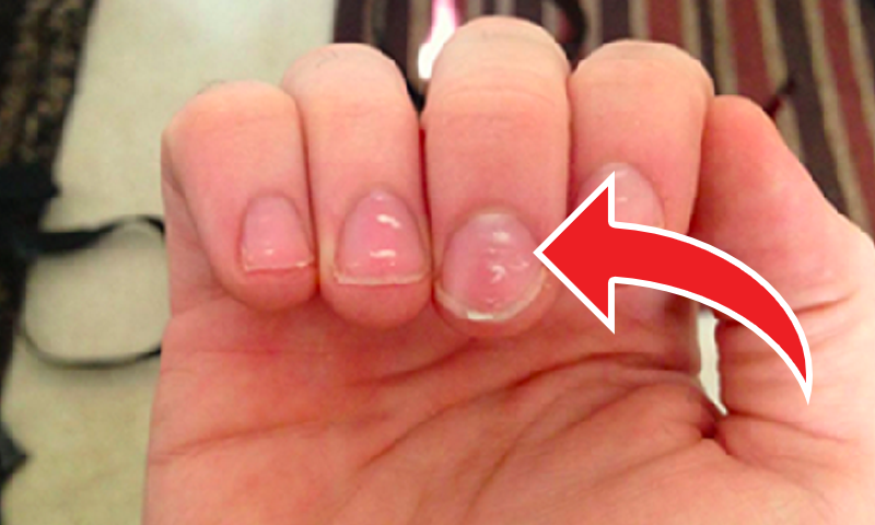 White Spots On Nail Bed