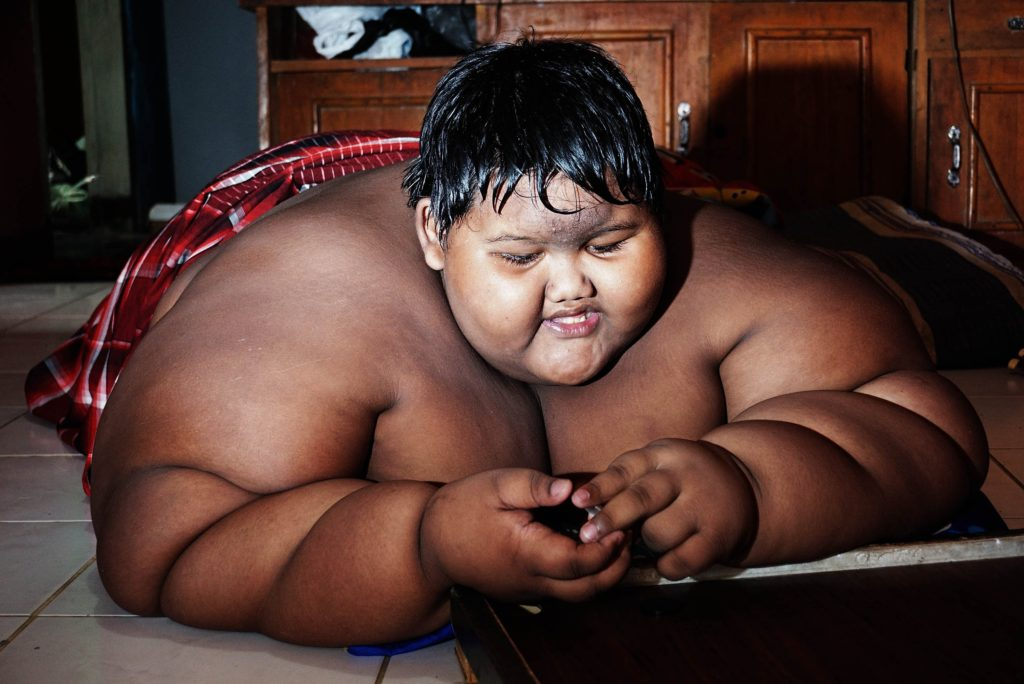 Fattest 10 Year Old Child In The World Weighing 192 Kg (5)