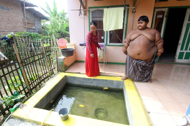 Fattest 10 Year Old Child In The World Weighing 192 Kg (6)