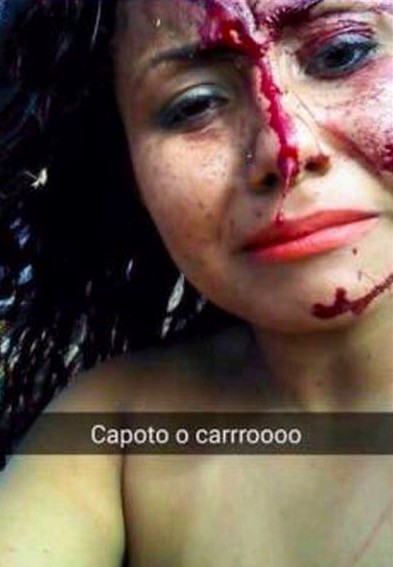 Girl's happy Snapchat Story Turned Painful In No Time (6)